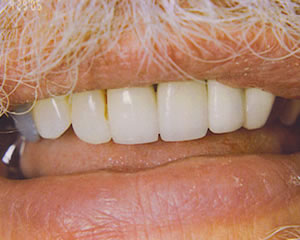 Warren Dental Dental Implants After