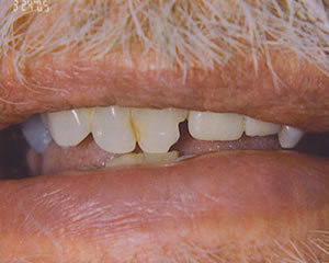 Warren Dental Dental Implants Before