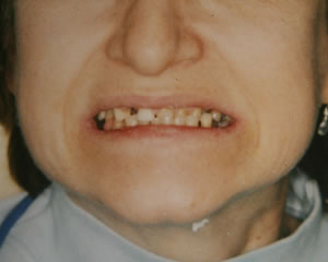 Warren Dental Full Reconstruction Before