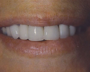 Warren Dental Porcelain Crowns - After