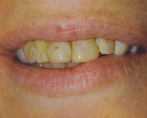 Warren Dental Porcelain Crowns - Before