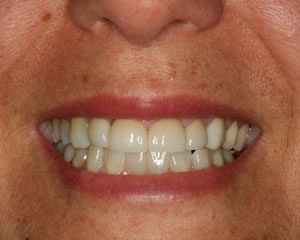 Warren Dental Porcelain Jacket Crown After