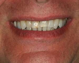 Warren Dental Porcelain Jacket Crown Before