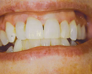 Warren Dental Teeth Bleaching After