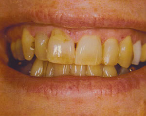 Warren Dental Teeth Whitening Before