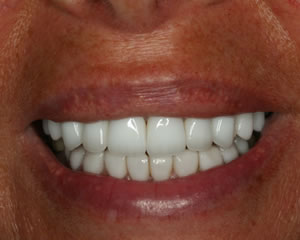 Warren Dental Veneers After