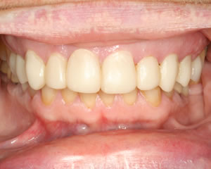 Warren Dental Veneers Before