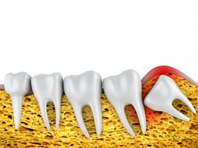 Understanding Why People Need Wisdom Teeth Removed